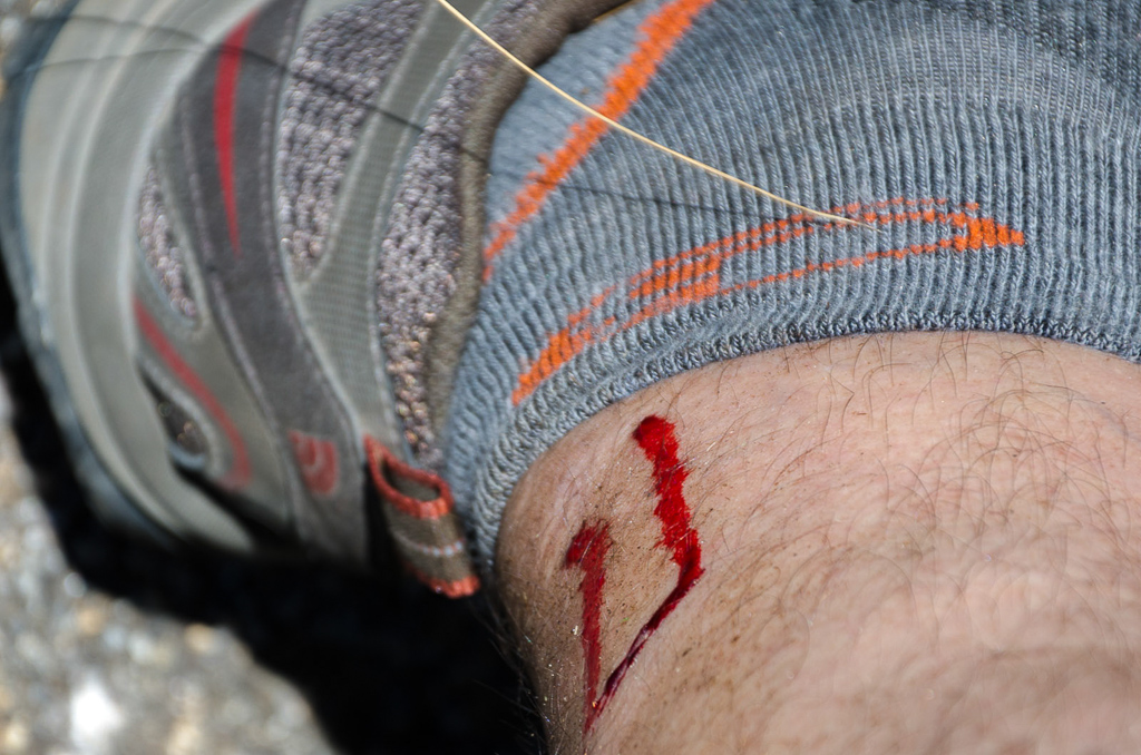bleeding-leg