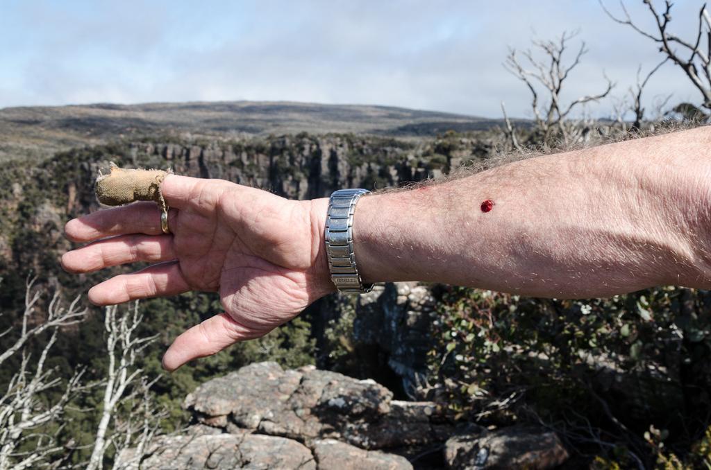 bleeding-arm