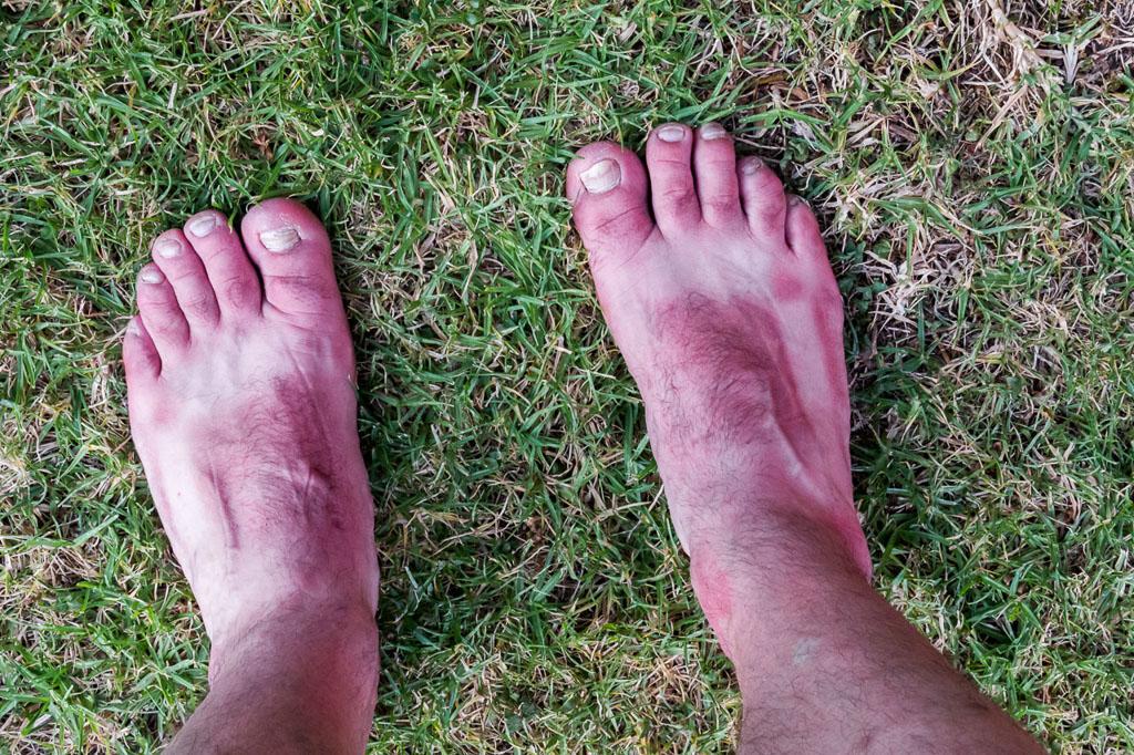 sun-burned-feet