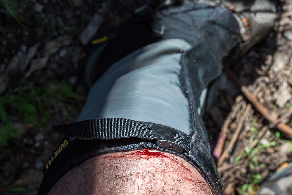 cut-leg-whilst-hiking