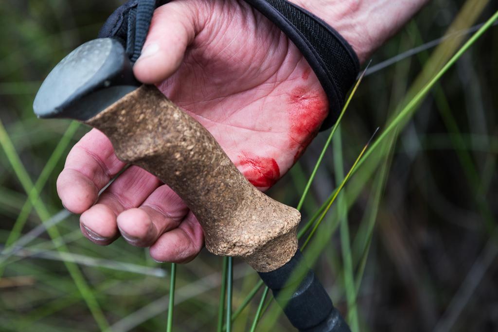 bleeding-hand-holding-trekking-pole