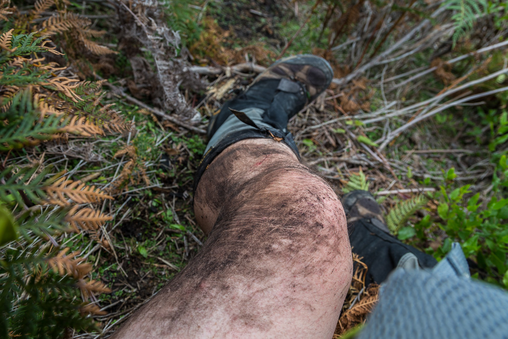 mud-on-leg-after-falling