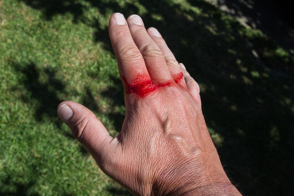 cut-hand
