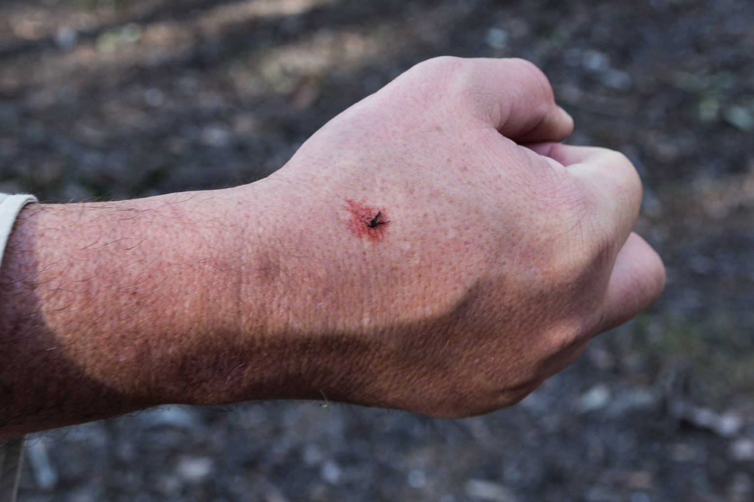 blood-from-mosquito-bite