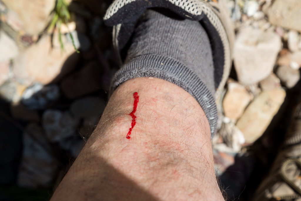 bleeding-leg-hiking
